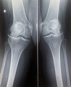 οστεοαρθρίτιδα γόνατος
