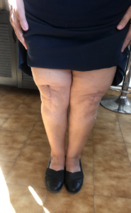 osteoarthritida gonatos