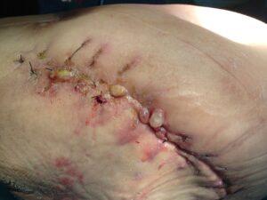 Κακή χειρουργική τεχνική στην σύγκλειση (συρραφή) του τραύματος και πολλαπλά αποστήματα πάνω στην χειρουργική τομή.