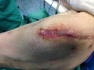 Πρώιμη εικόνα λοίμωξης του χειρουργικού τραύματος που απαιτεί άμεση χειρουργική παρέμβαση για να μην οδηγηθούμε στην… αφαίρεση των εμφυτευμάτων.